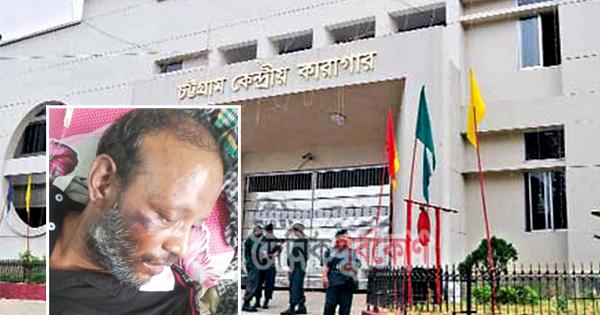 হাজতিকে নির্যাতনের অভিযোগ, চট্টগ্রামে জেল সুপার-জেলারের বিরুদ্ধে মামলা
